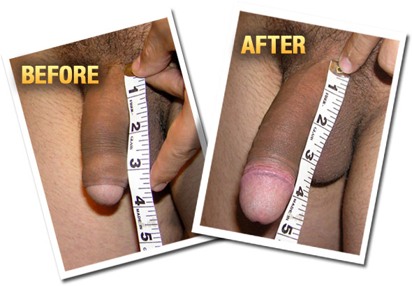 before after top - Waar kopen MaleExtra Male Enhancement Supplementen in Enschede Nederland